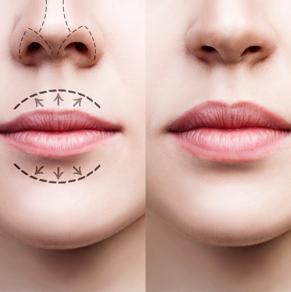 Lip Augmentation Enhancement
